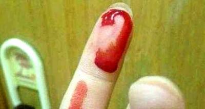 睡觉的时候梦见自己咬破手指流血是什么征兆